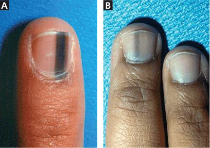 Evaluation Of Nail Lines Color And Shape Hold Clues Cleveland Clinic Journal Of Medicine