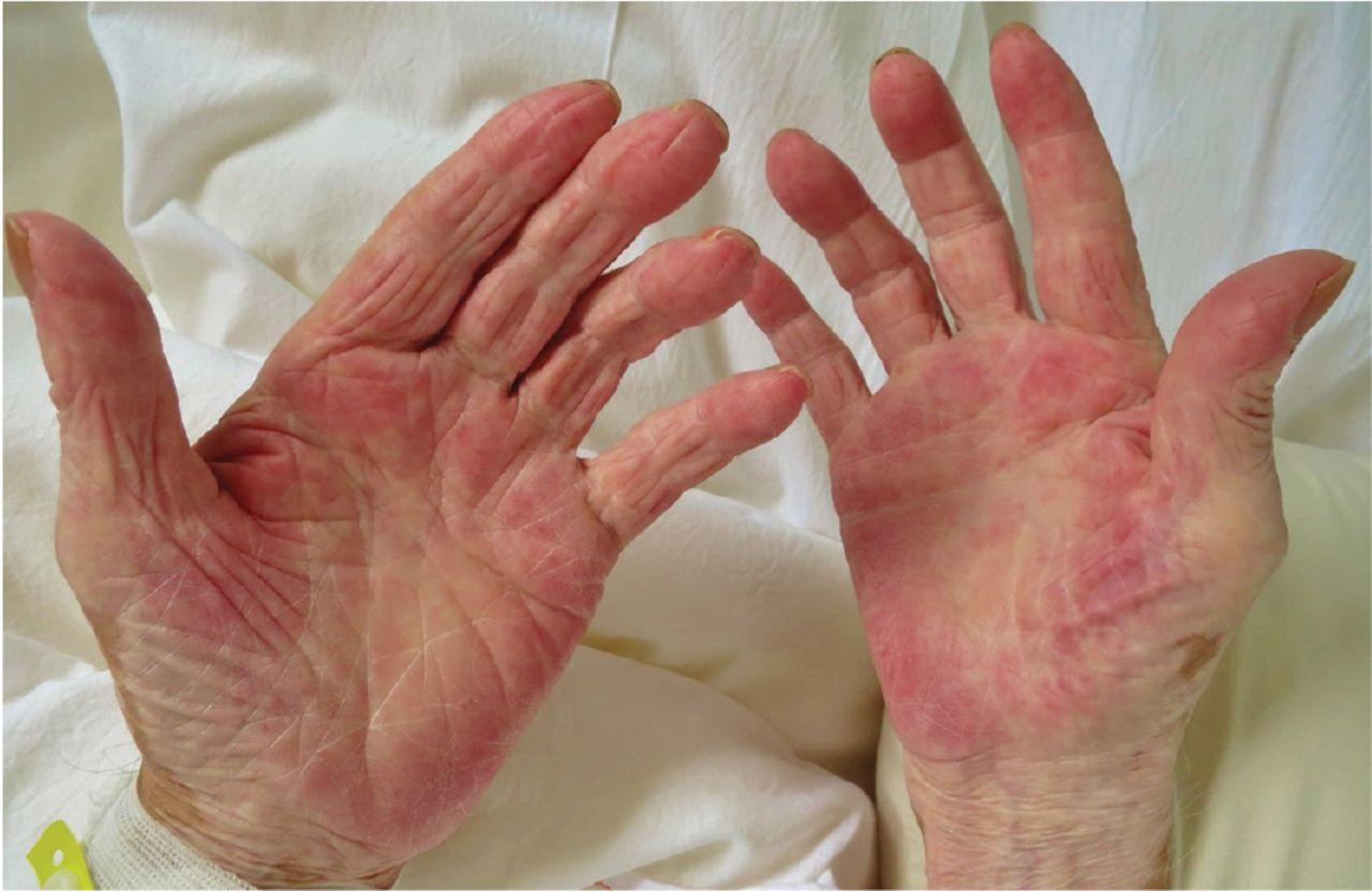 Érythème palmaire comme signe de cancer |  Cleveland Clinic Journal of ...