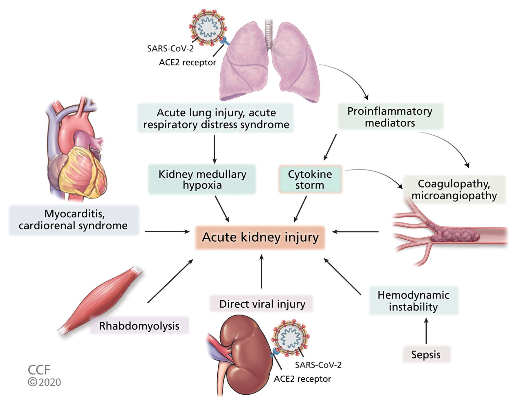 Covid 19 And The Kidney Cleveland Clinic Journal Of Medicine