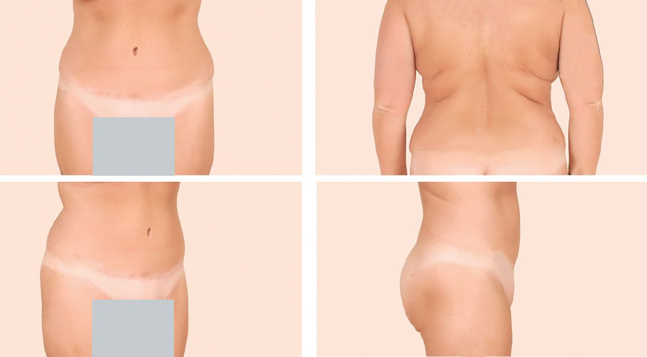 Liposuction Concepts Safety And Techniques In Body Contouring Surgery Cleveland Clinic Journal Of Medicine