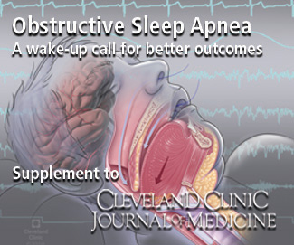 Sleep Apnea Supplement