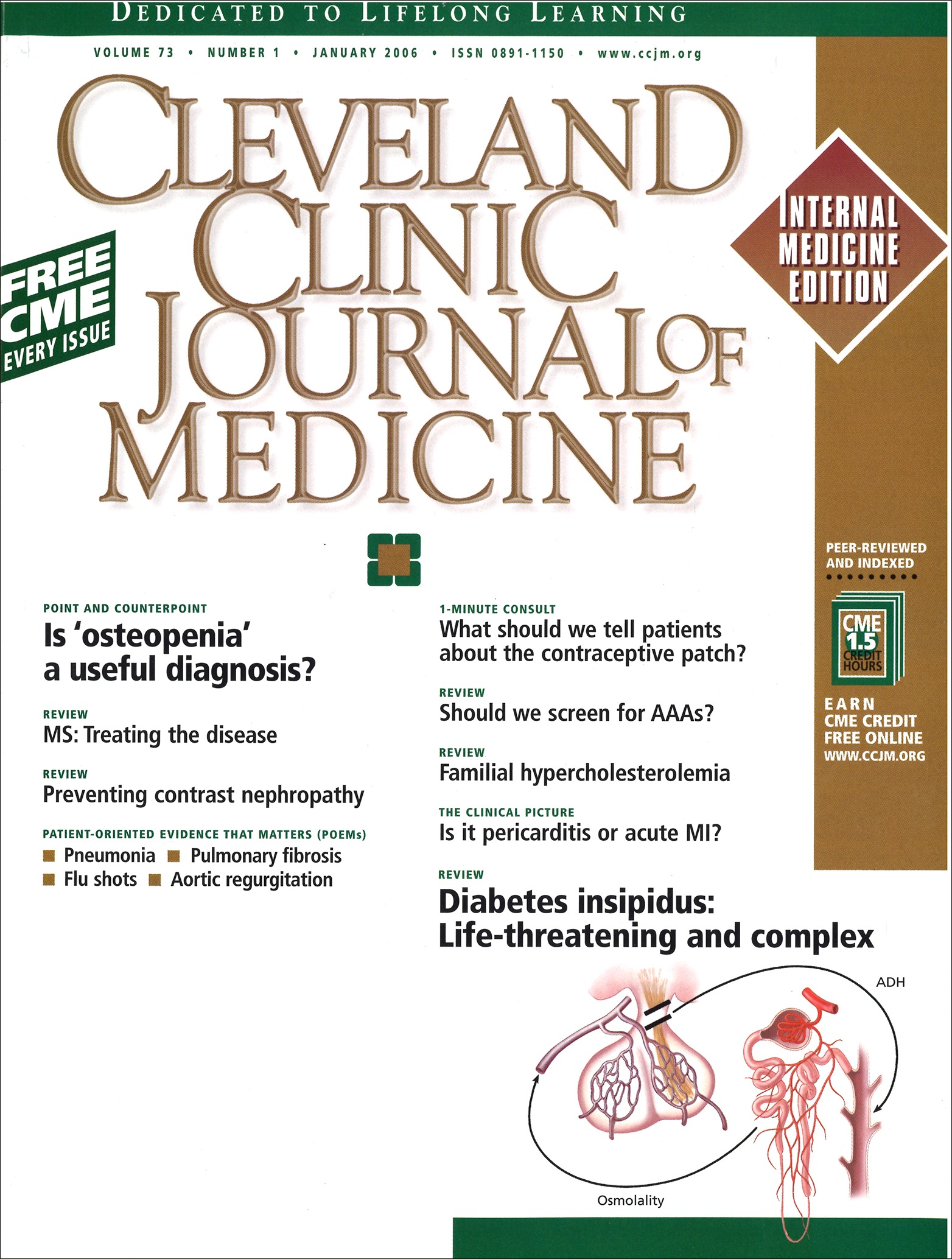 Diabetes Insipidus Diagnosis And Treatment Of A Complex Disease